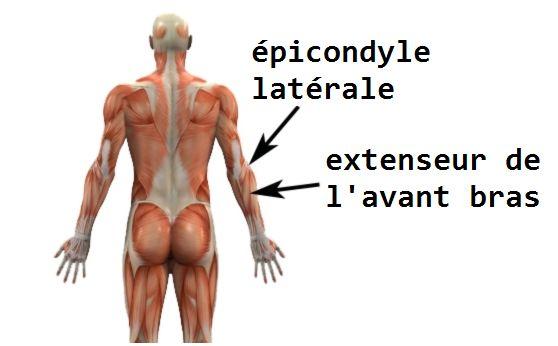 épicondylite traitement