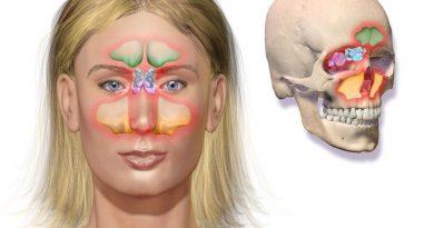 infection des sinus