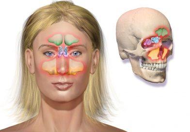 Infection des sinus: symptômes et signes + 10 remèdes naturels