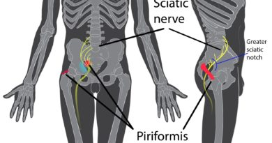 Approche ostéopathique du syndrome du piriforme