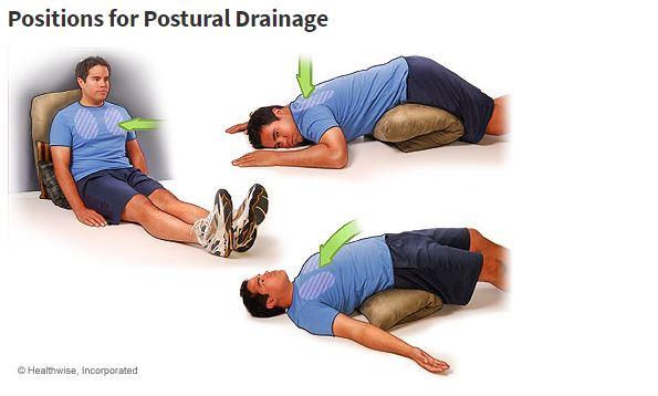drainage postural comment l 39 effectuer therapeutes magazine. Black Bedroom Furniture Sets. Home Design Ideas