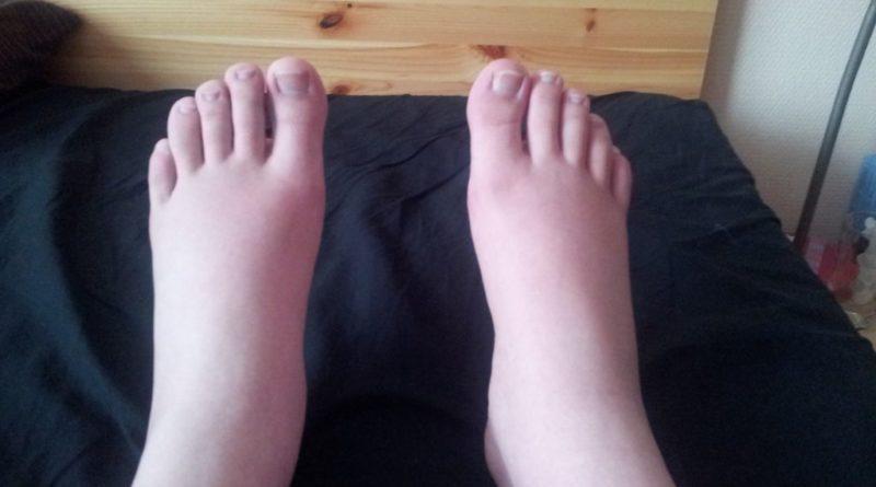 gonflement des pieds