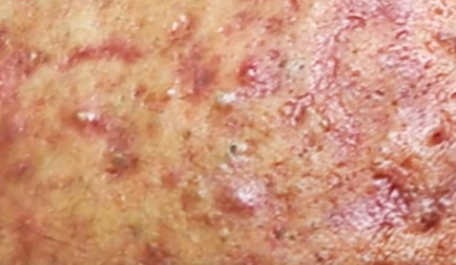acné kystique