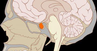 Hypopituitarisme : Symptômes causes et traitement