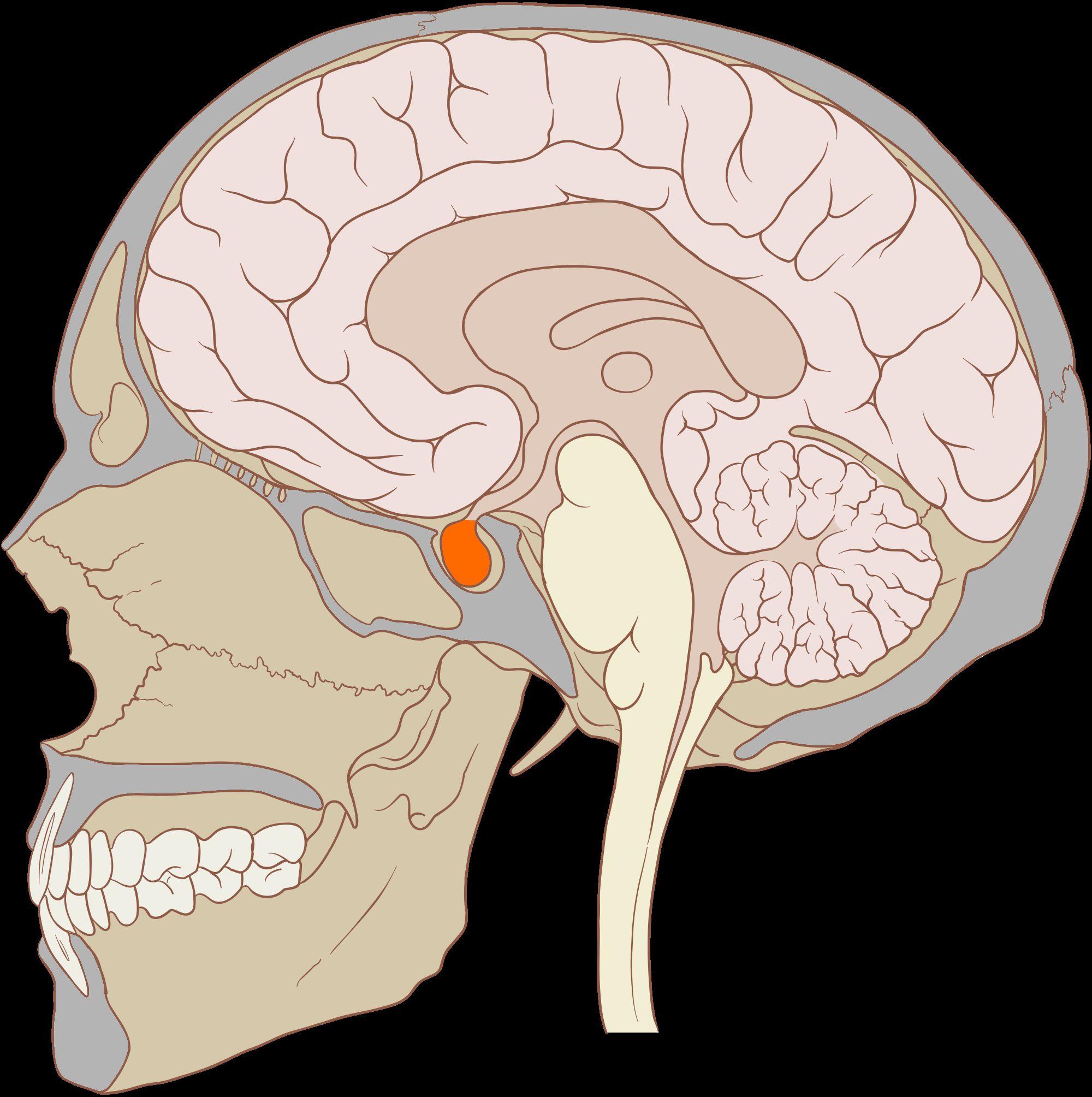 macroadénome hypophysaire symptomes
