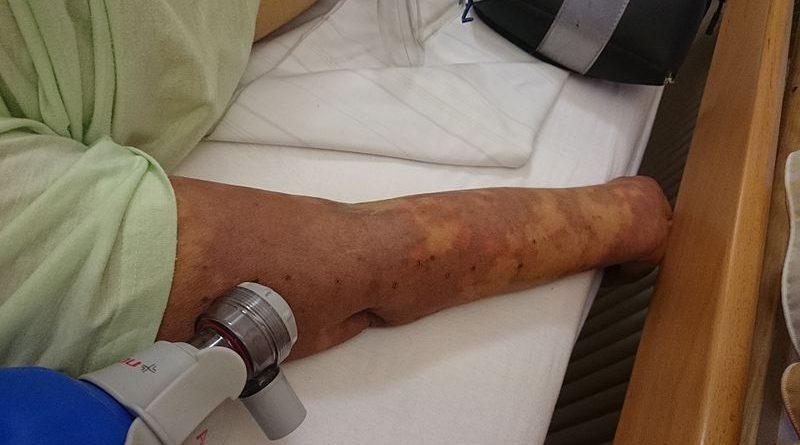 Septicémie : Causes, symptômes et traitement