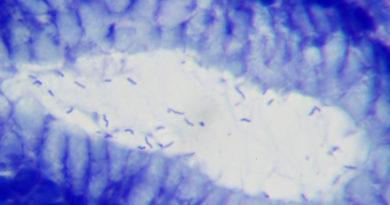 Hélicobacter Pylori
