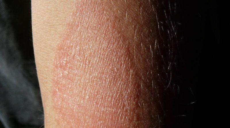 Eczéma: causes, symptômes, prévention + 13 traitements naturels