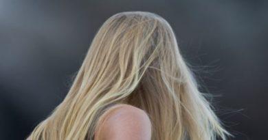 chutes de cheveux femmes