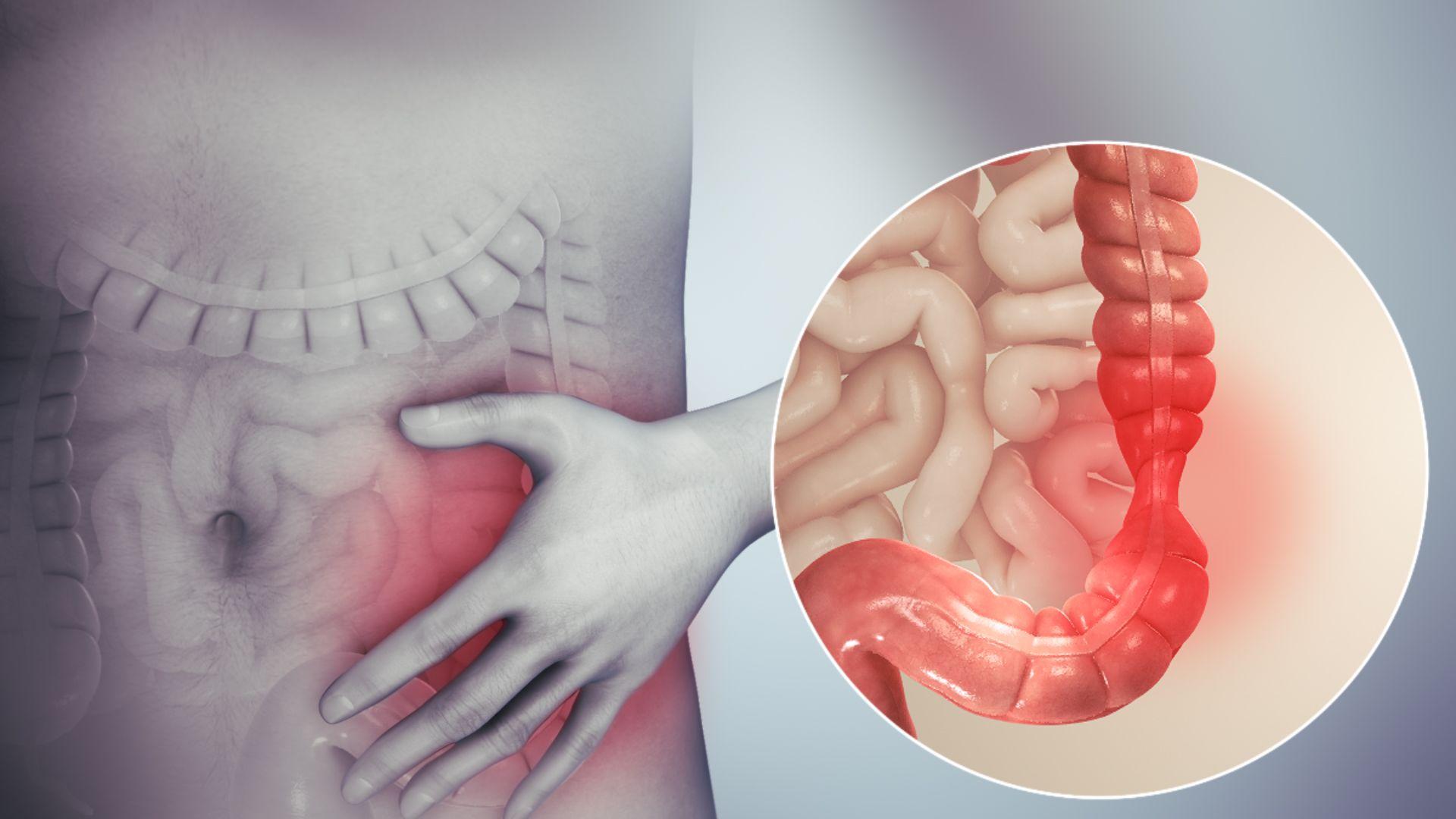 ¿Qué es un intestino irritable?  Cuáles son las soluciones ...