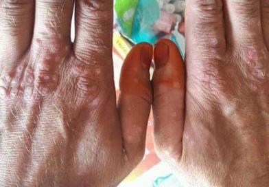 Les traitements naturels du psoriasis, maladie à plusieurs visages