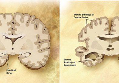 Deux mauvaises habitudes à éviter pour éloigner la maladie d'Alzheimer